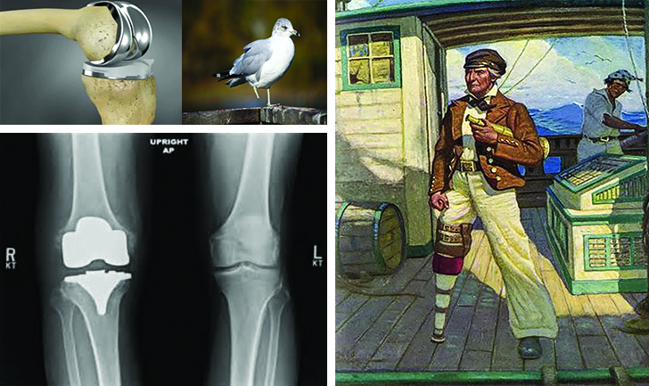 A complete knee replacement is what I need to become seaworthy. Leg issues didn't seem to slow down Ahab in pursuit of his obsession.
